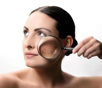 лечение проблемной кожи на